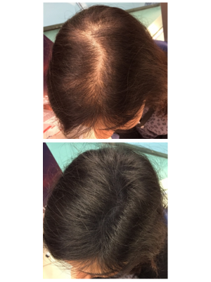 Keratin Hair Fibres 30g - Women